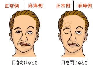 顔面神経麻痺の分類、特徴及び原因