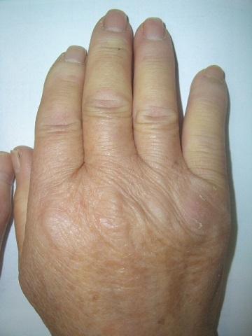 強皮症の皮膚